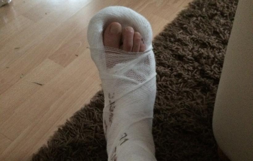 Noga pana Dariusza musiała być usztywniona, ale jak mówi  - właściwej pomocy doczekał się dopiero w szpitalu w Oświęcimiu