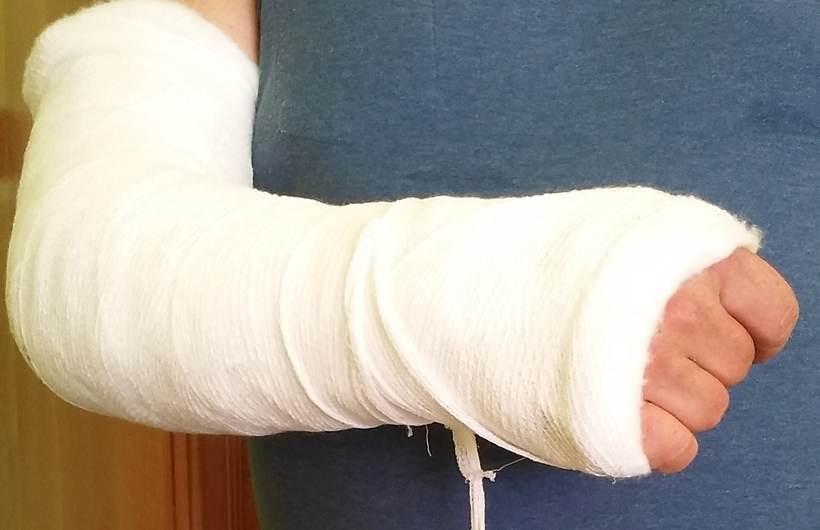 Mężczyzna ze złamaną kością w ręce trafił do wadowickich lekarzy. Tutaj diagnoza go zaskoczyła